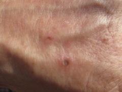 に 刺され る アシナガバチ
